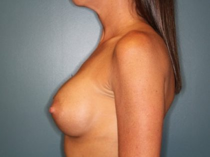 Breast Augmentation Before & After Patient #250