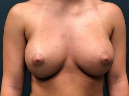 Breast Augmentation Before & After Patient #247