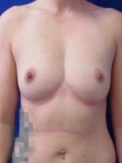 Breast Augmentation Before & After Patient #278