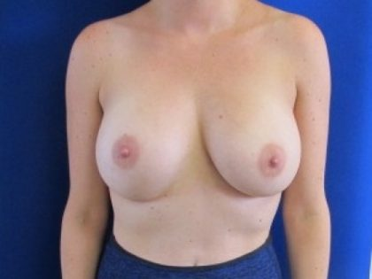Breast Augmentation Before & After Patient #285