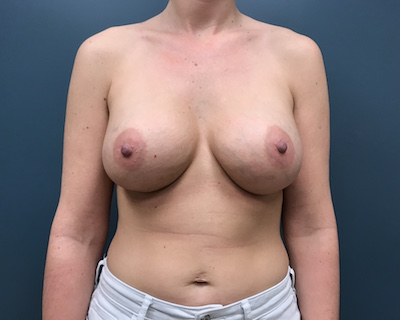 Breast Augmentation Before & After Patient #1059