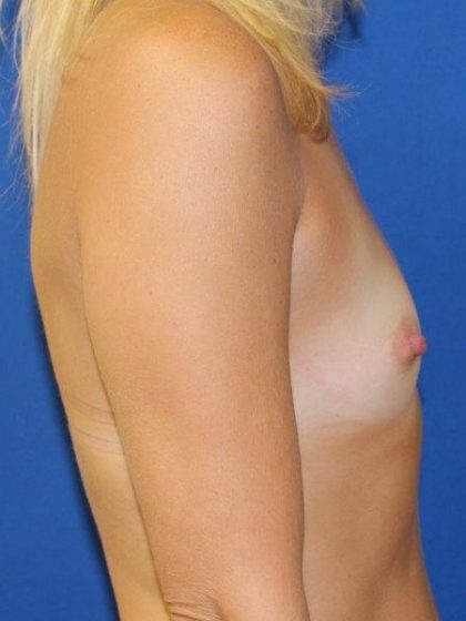 Breast Augmentation Before & After Patient #292