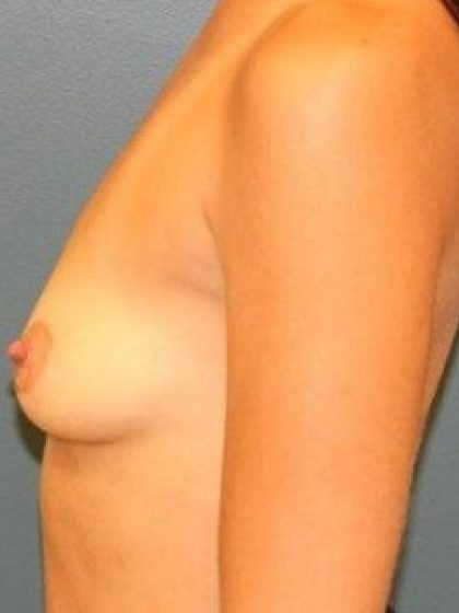 Breast Augmentation Before & After Patient #233