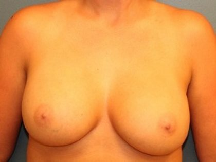 Breast Augmentation Before & After Patient #240