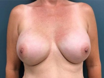 Breast Reconstruction Before & After Patient #257