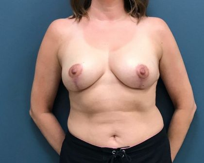 Breast Lift Before & After Patient #297