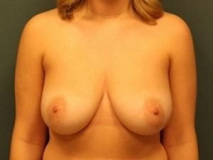 Breast Lift Before & After Patient #302