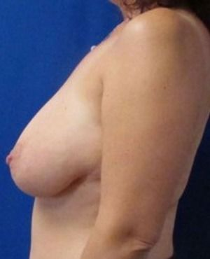 Breast Lift Before & After Patient #307