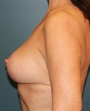 Breast Lift Before & After Patient #314