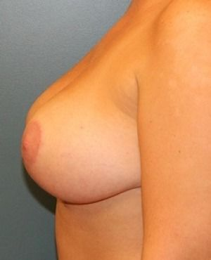 Breast Lift Before & After Patient #321