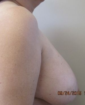 Breast Reduction Before & After Patient #335