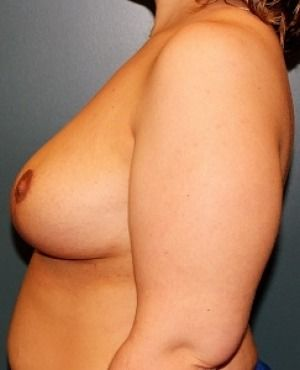 Breast Reduction Before & After Patient #342