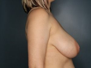 Breast Reduction Before & After Patient #349