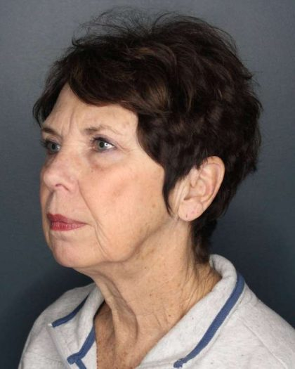 Facelift Before & After Patient #504