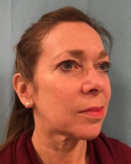 Facelift Before & After Patient #511
