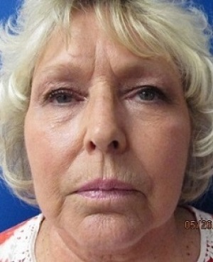 Facelift Before & After Patient #529