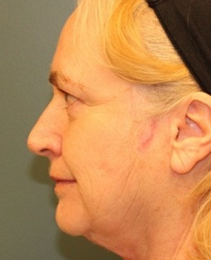 Facelift Before & After Patient #532