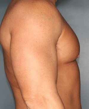 Gynecomastia Before & After Patient #409