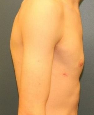 Gynecomastia Before & After Patient #423