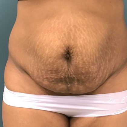 Liposuction Before & After Patient #430
