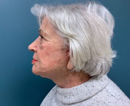 Neck Lift Before & After Patient #546