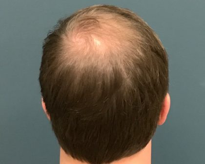 PRP Before & After Patient #607