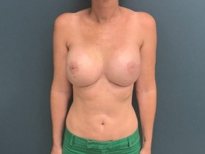Breast Reconstruction Before & After Patient #374