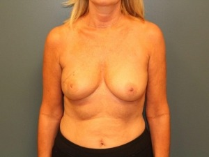 Breast Reconstruction Before & After Patient #381
