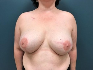 Breast Reconstruction Before & After Patient #388