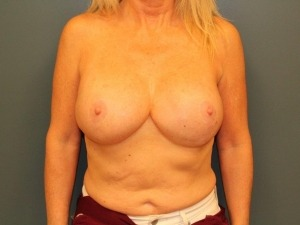 Breast Reconstruction Before & After Patient #402