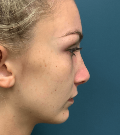 Rhinoplasty Before & After Patient #563