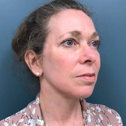 Blepharoplasty Before & After Patient #570