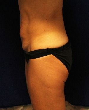 Tummy Tuck Before & After Patient #465