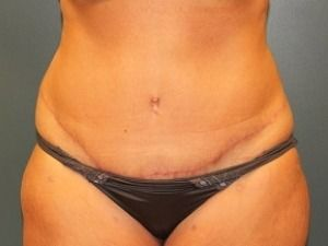 Tummy Tuck Before & After Patient #472