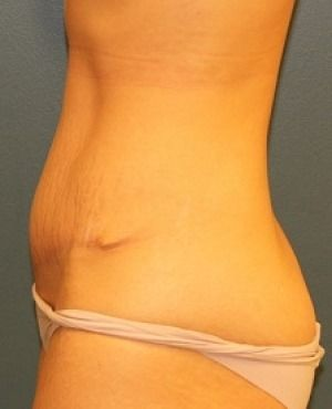 Tummy Tuck Before & After Patient #477