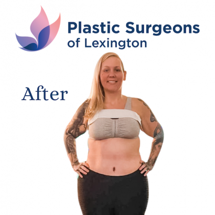 Tummy Tuck Before & After Patient #1140