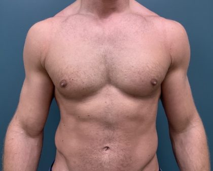 Gynecomastia Before & After Patient #1143