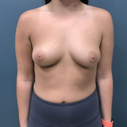 Breast Augmentation Before & After Patient #1118