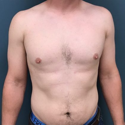 Gynecomastia Before & After Patient #1108