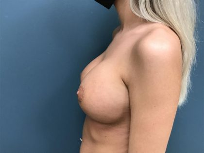 Breast Augmentation Before & After Patient #1227