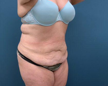 Tummy Tuck Before & After Patient #1269