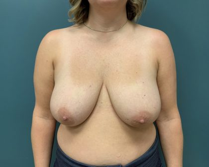 Breast Reduction Before & After Patient #1258
